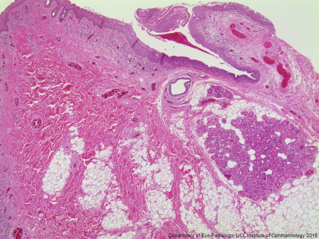 Lacrimal gland within plical tissue