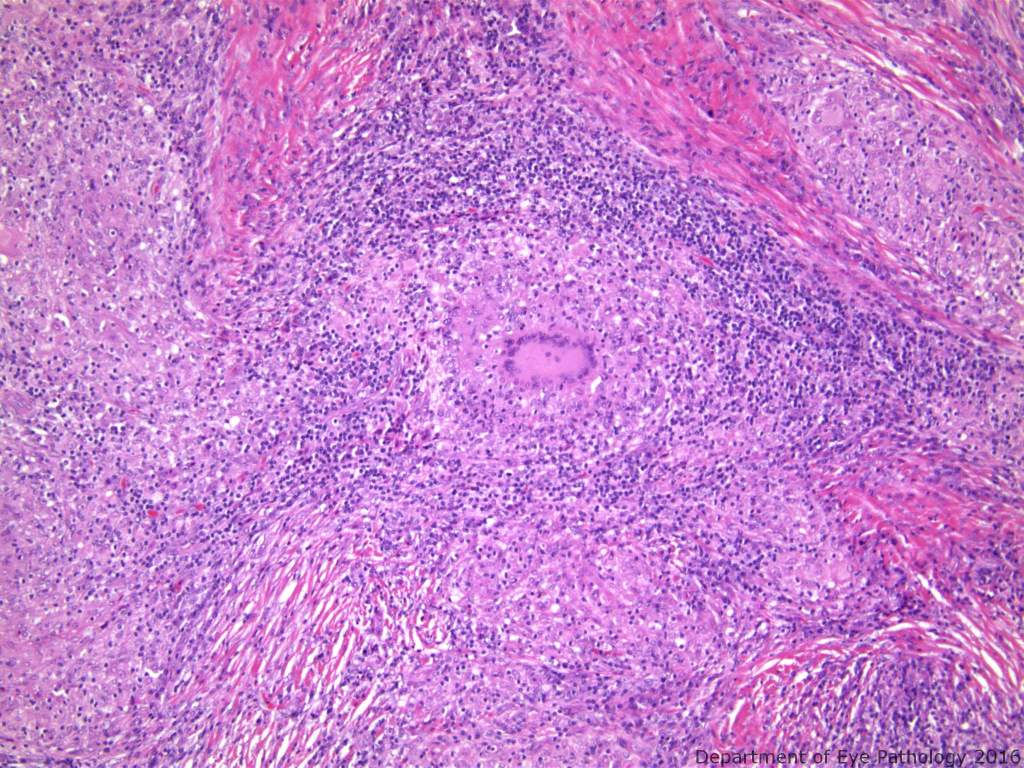 Higher power view with multinucleate giant cell